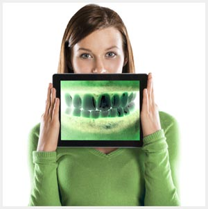 Dental Hardware and Software Integration